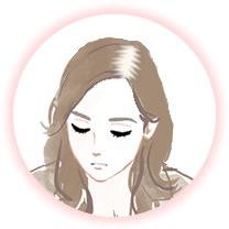 びまん性脱毛症例
