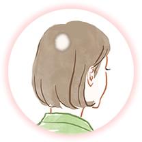 細菌(円形、多発)脱毛症例