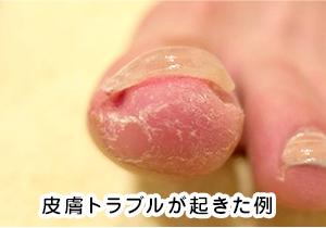 皮膚トラブルが起きた例