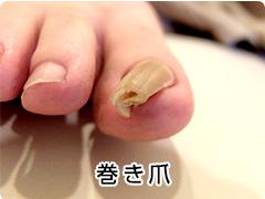 巻き爪の写真