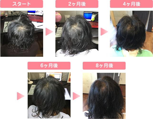 女性の発毛施術例