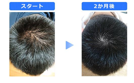 男性の発毛施術例
