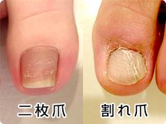 二枚爪・割れ爪の写真