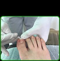 爪の汚れを綺麗に除去します